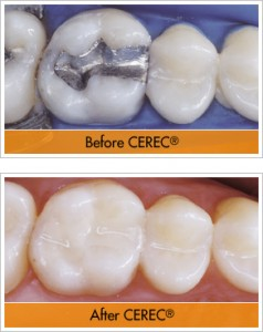 before-after-cerec-multiple-units-bridge