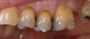 before-after-cases-crowns-bridges