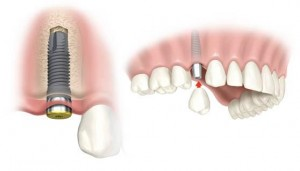 cheap dental implants abroad